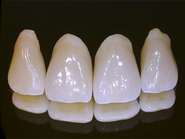 esthetic dental crowns