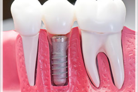 Dental implants Palm Beach Gardens
