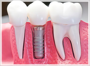 Dentist palm beach Gardens dental implants