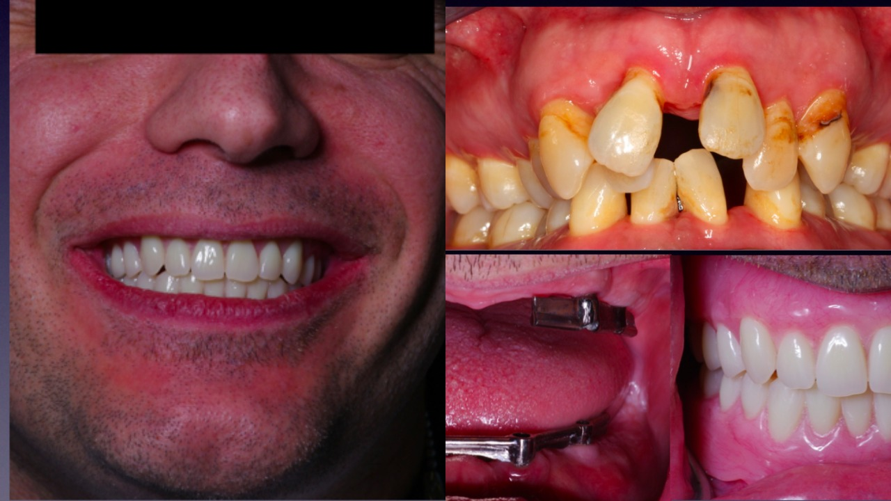 Implants Dentures Palm Beach