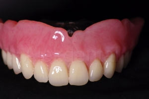 Natural looking denture implants no adhesive