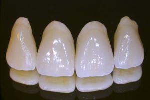 Esthetic porcelain crowns