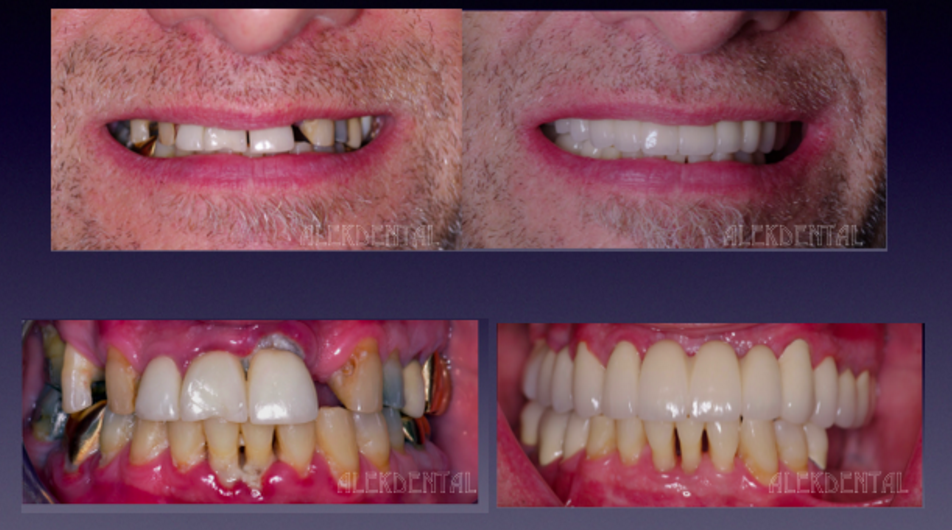 Palm Beach Complete teeth rehab