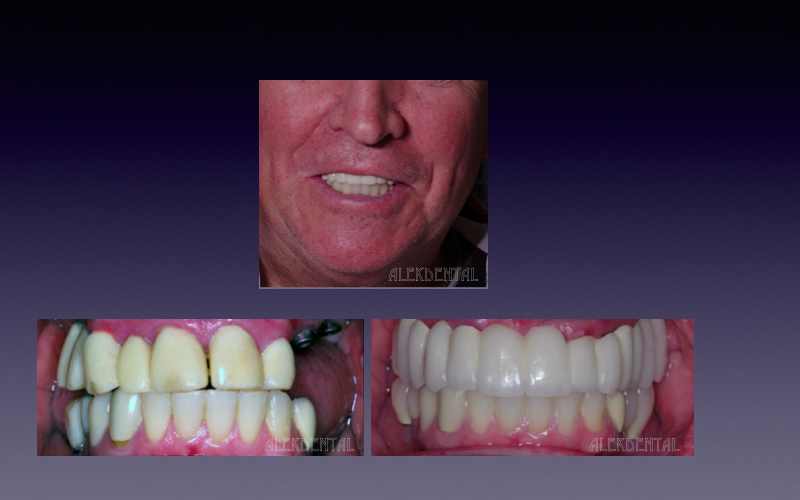 Palm Beach implants Crowns Full mouth rehab