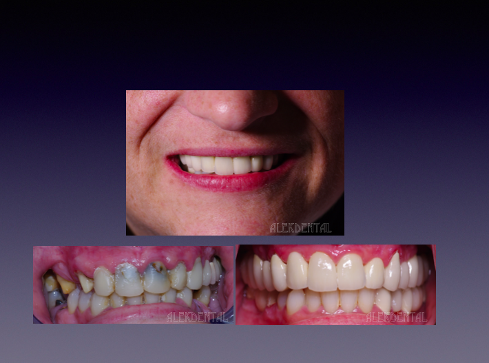 Porcelain veneers Palm Beach